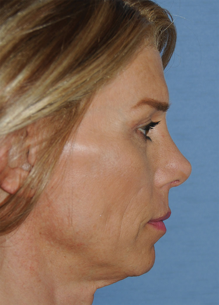 After Transgender Feminization Rhinoplasty Procedure Side Profile