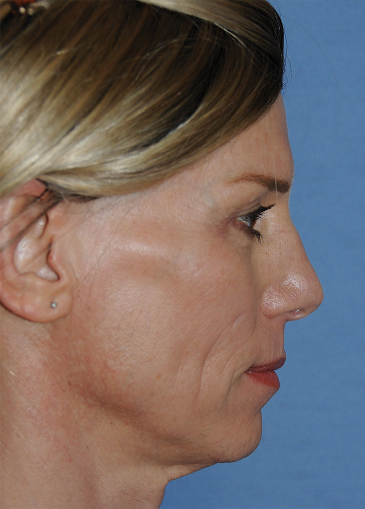 Before Transgender Feminization Rhinoplasty Procedure Side Profile