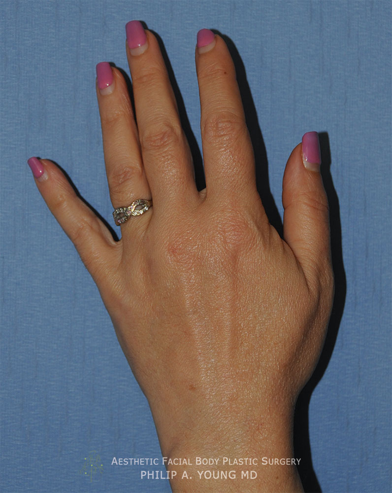 Fat Grafting to the Hands and Fingers After Image