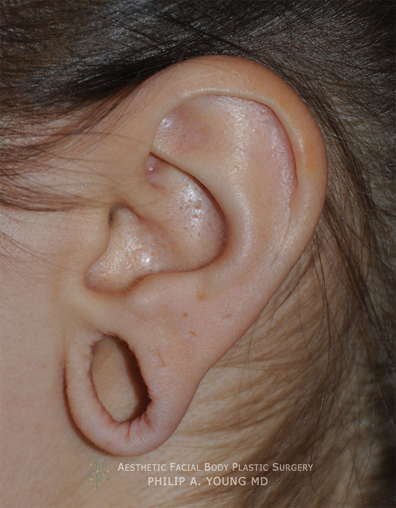 Before Ear Reconstruction Repair for Gauged | Stretched | Torn Earlobes Left Side