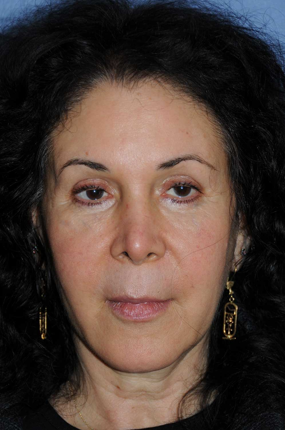 Incision Less Face Lift Eyelift After Image Front View