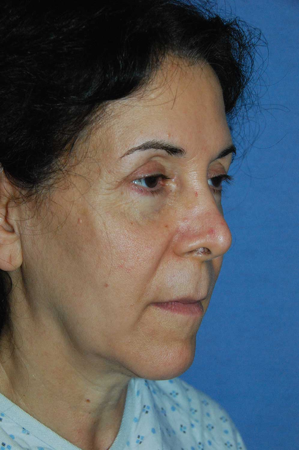 Incision Less Face Lift Eyelift Before Image Oblique View
