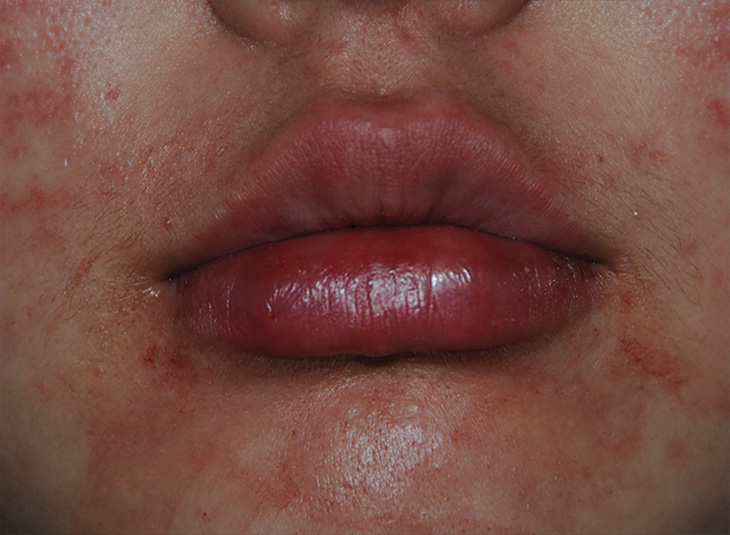 Lip injections immediately after injections
