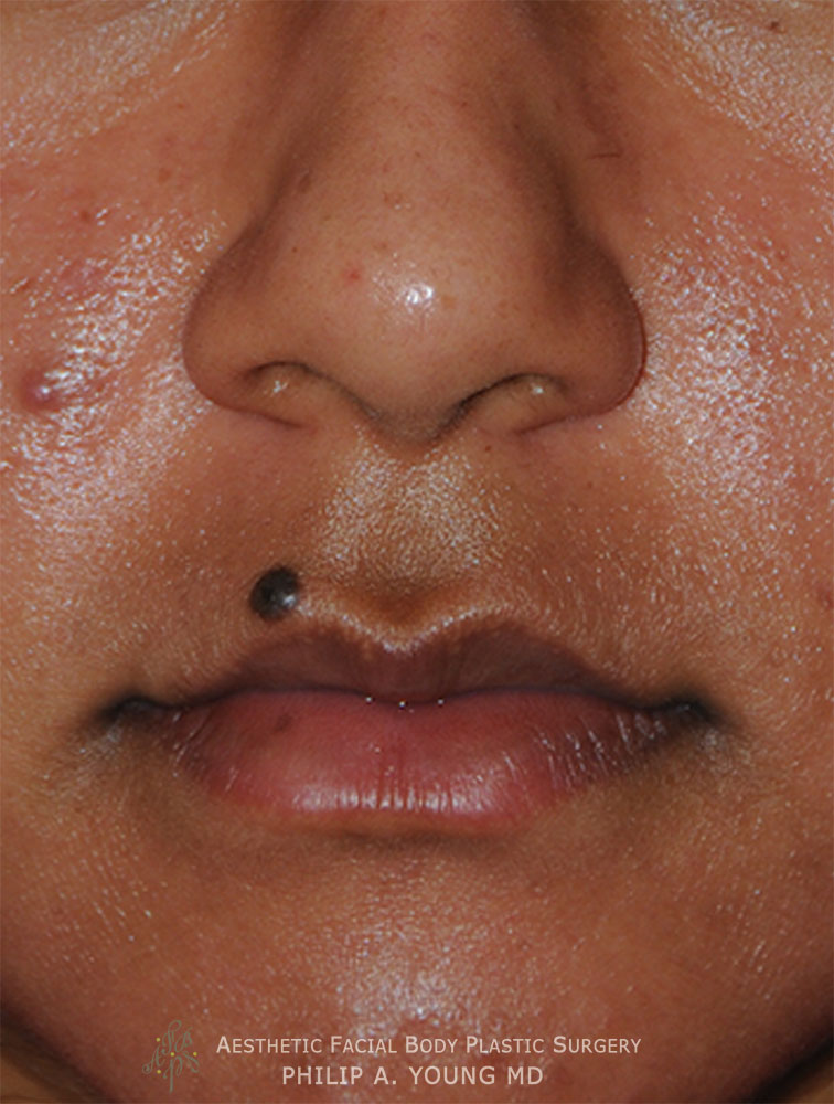 Before Upper Corner of the Liplift and Right Upper Mole Laser Removal Close Up
