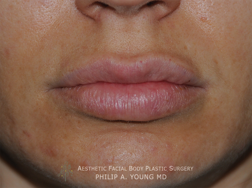 After Lip Reduction | Thinning For a Successful Fat Injection Procedure that the patient wanted reversed