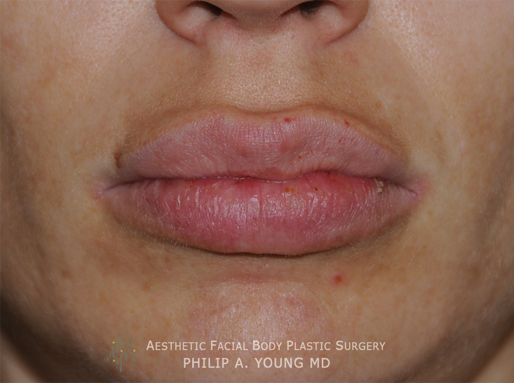 Before Lip Reduction | Thinning For a Successful Fat Injection Procedure that the patient wanted reversed