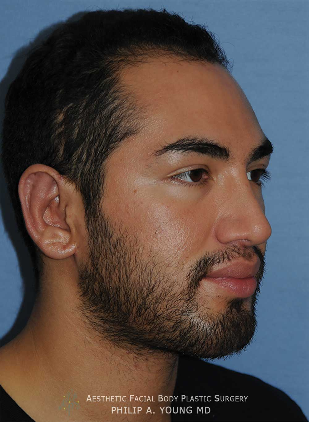After Otoplasty | Ear Reshaping Chin Implant for Prominent Ears, Retruded & Small Chin Right Oblique