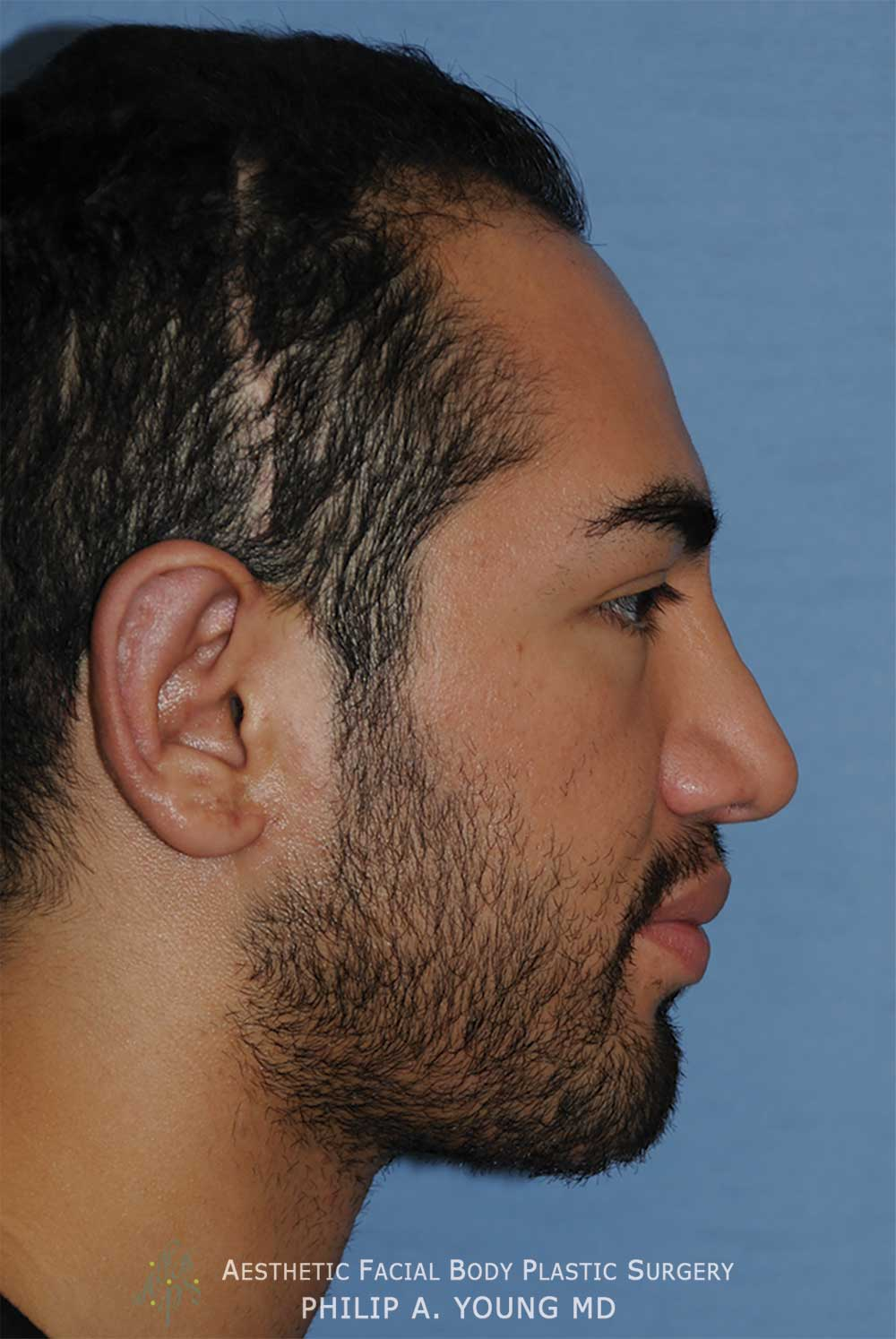 After Otoplasty | Ear Reshaping Chin Implant for Prominent Ears, Retruded & Small Chin Right Side Image