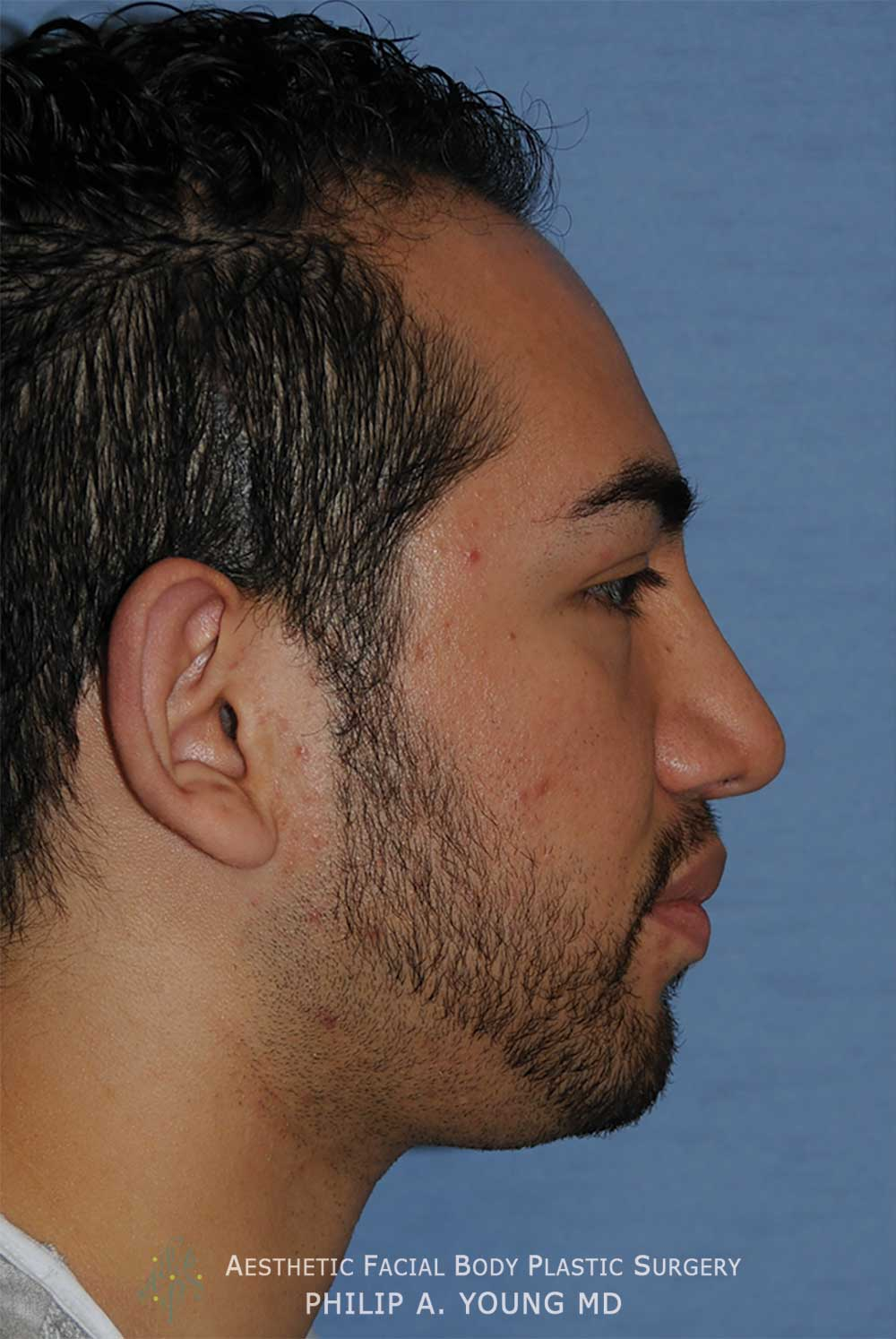 Before Otoplasty | Ear Reshaping Chin Implant for Prominent Ears, Retruded & Small Chin Right Side Image