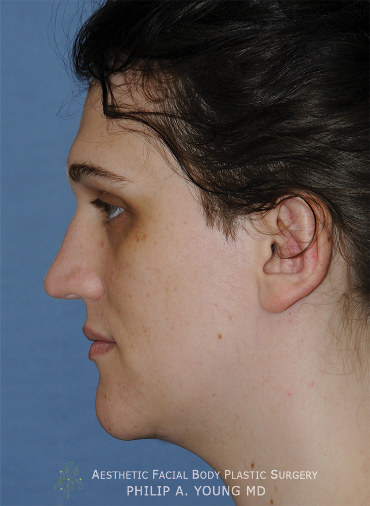 After Transgender Facial Feminization Otoplasty & Chin Reduction Procedure Side View