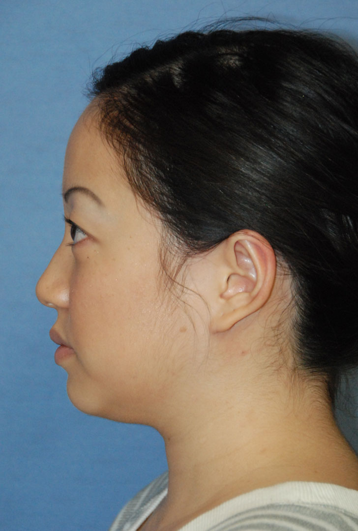 after side view otoplasty big protruding ears asian female patient