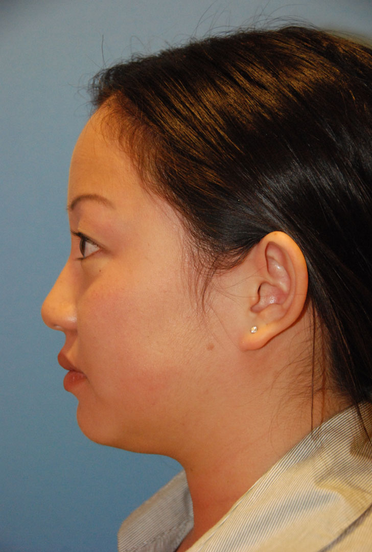 before side view otoplasty big protruding ears asian female patient