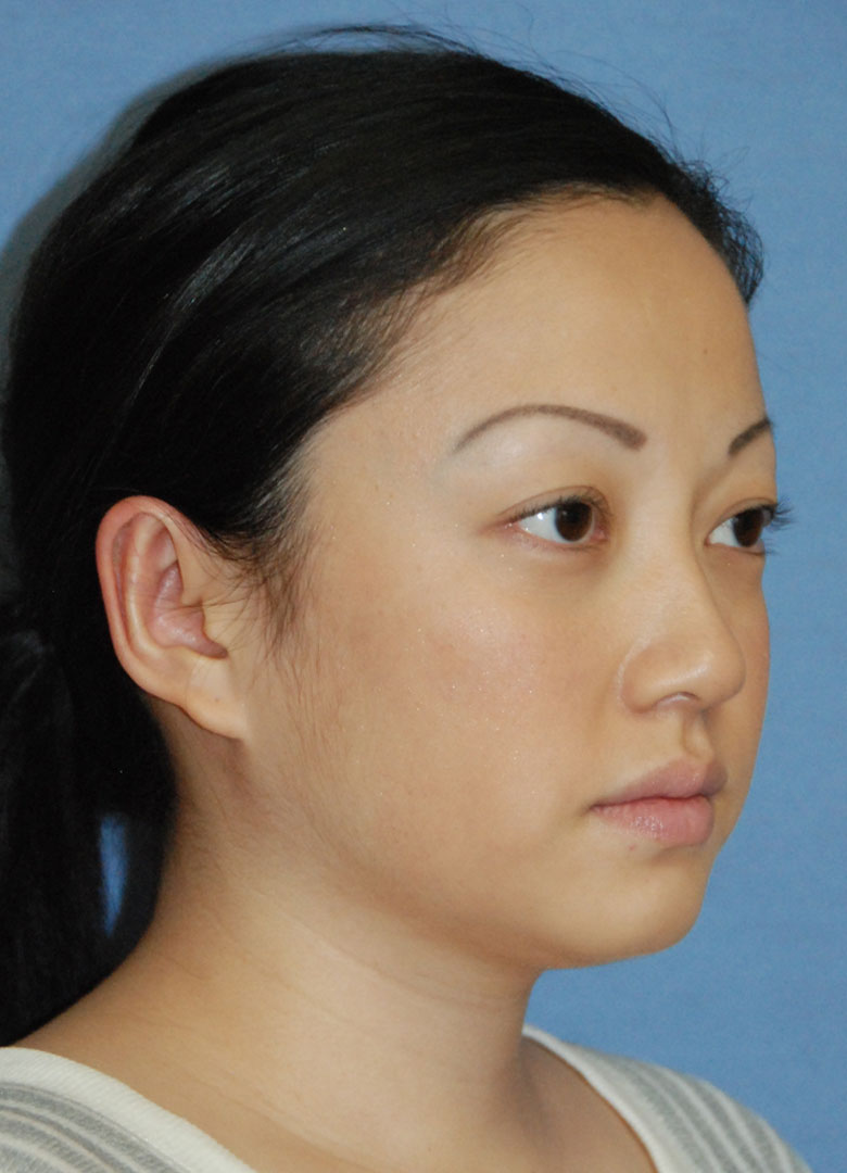 after oblique view otoplasty big protruding ears asian female patient