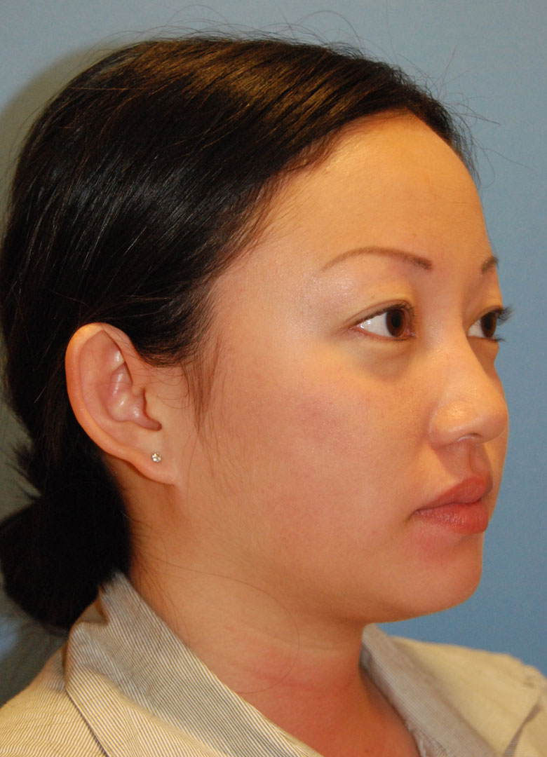before oblique view otoplasty big protruding ears asian female patient