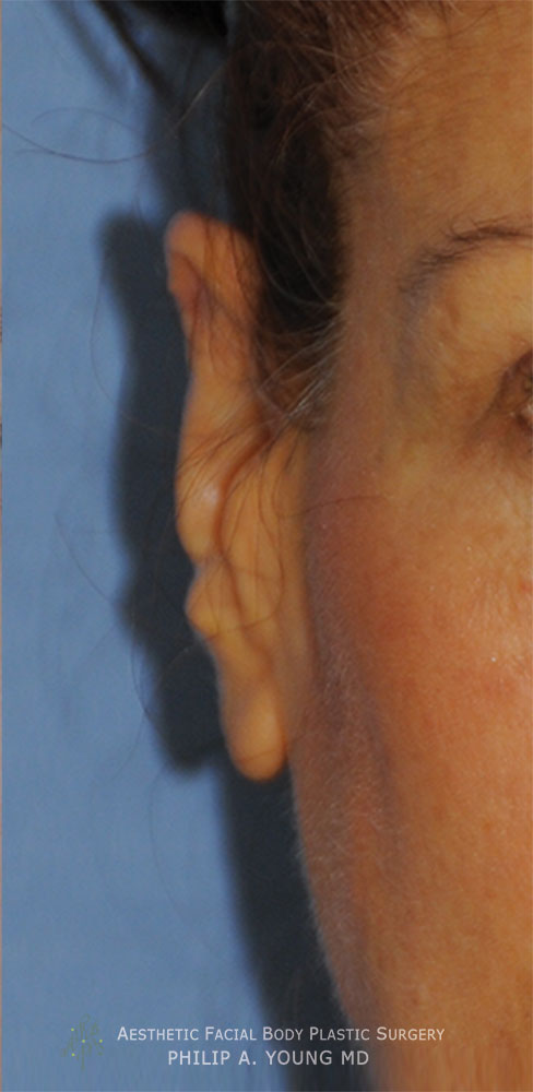 Otoplasty Revision for Macrotia Large Ears and Earlobe Repinning After