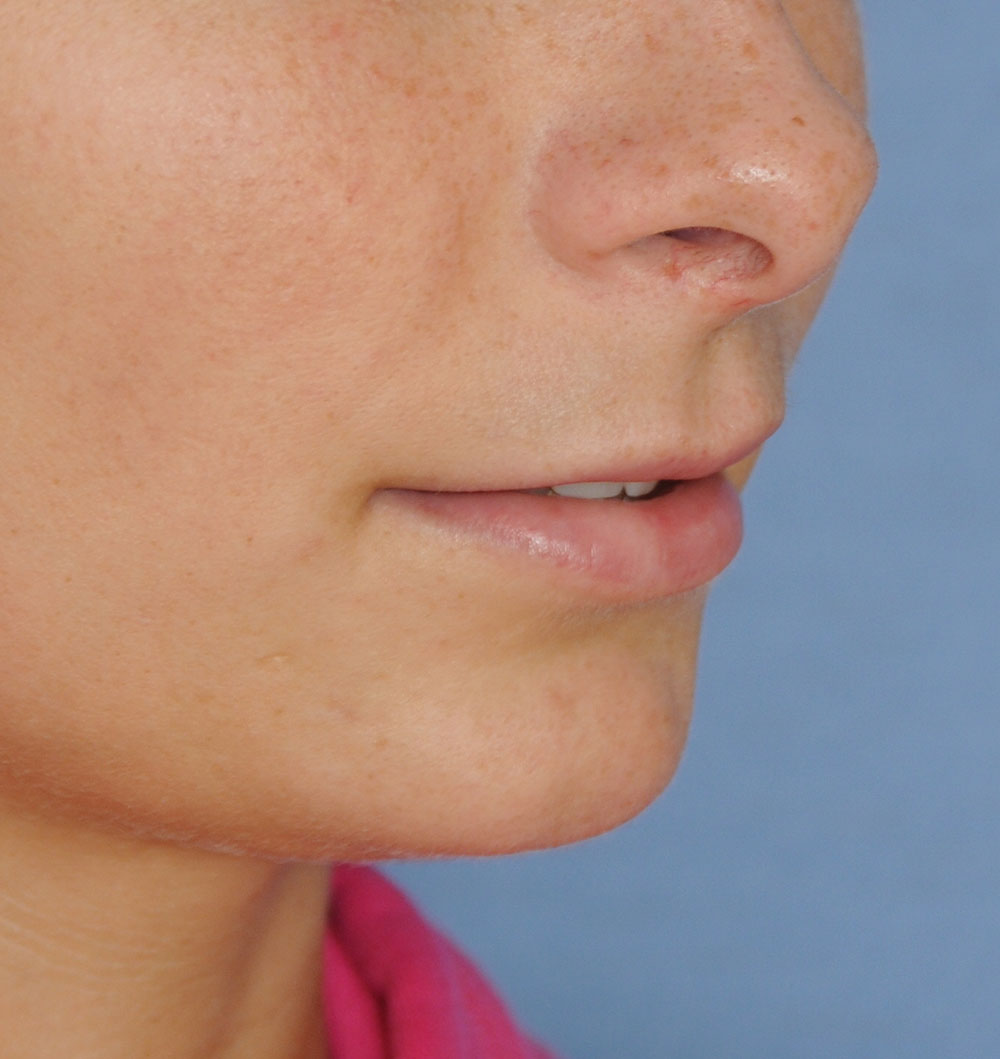 Before PermaLip Silicone Lip Implants Augmentation Oblique View