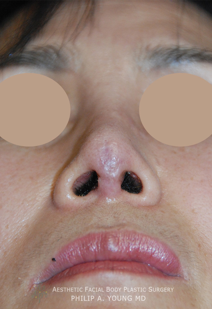 Revision Rhinoplasty 06
