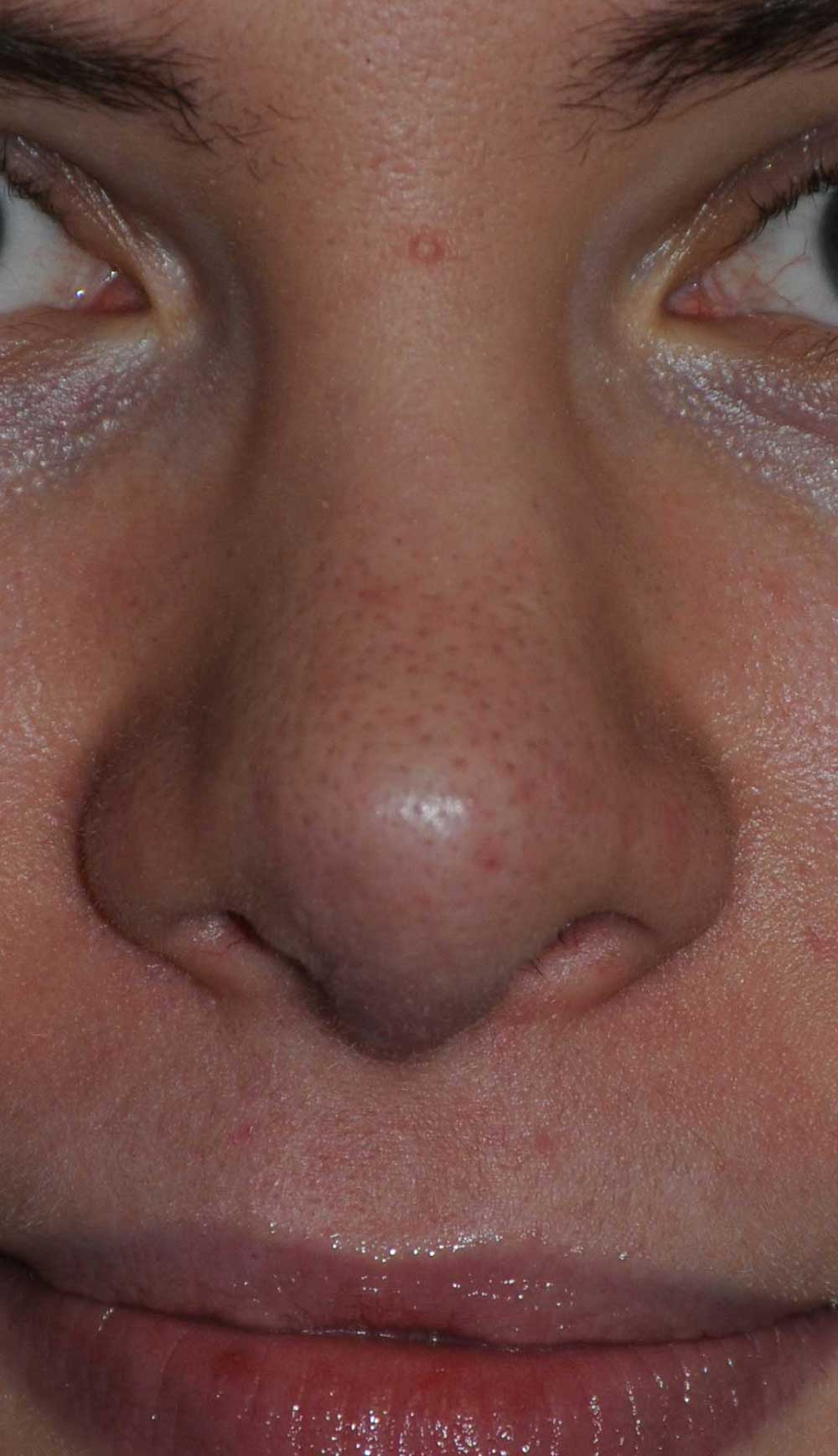 After Revision Rhinoplasty for Droopy Tip, Tip Irregularities, Nasal Bridge Bump, Narrowed Right more than Left Nasal Airway, Collapsing Nostrils, and Crooked Nose.