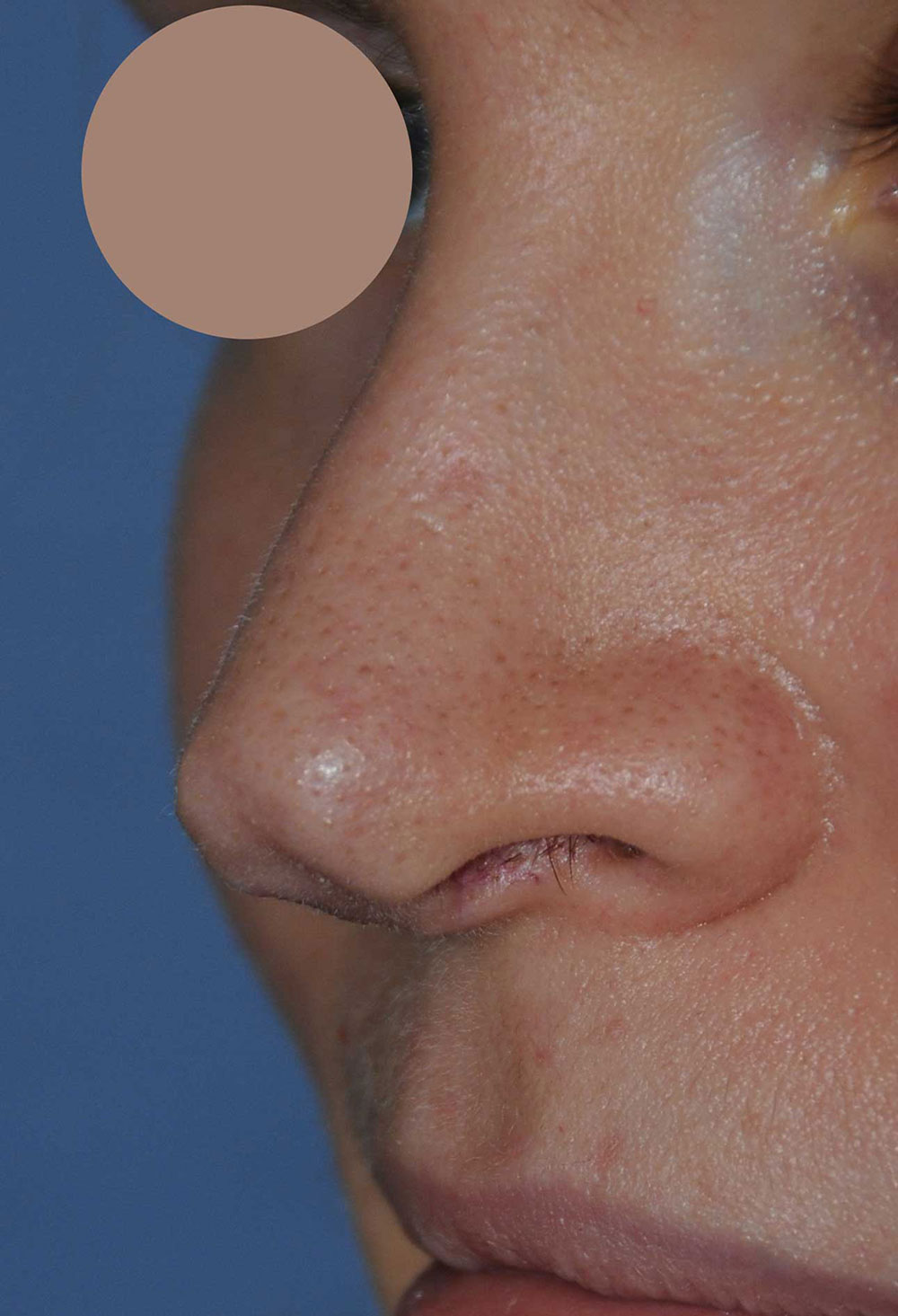 Revision Rhinoplasty for Droopy Tip, Tip Irregularities, Nasal Bridge Bump, Narrowed Right more than Left Nasal Airway, Collapsing Nostrils, and Crooked Nose Left Oblique View