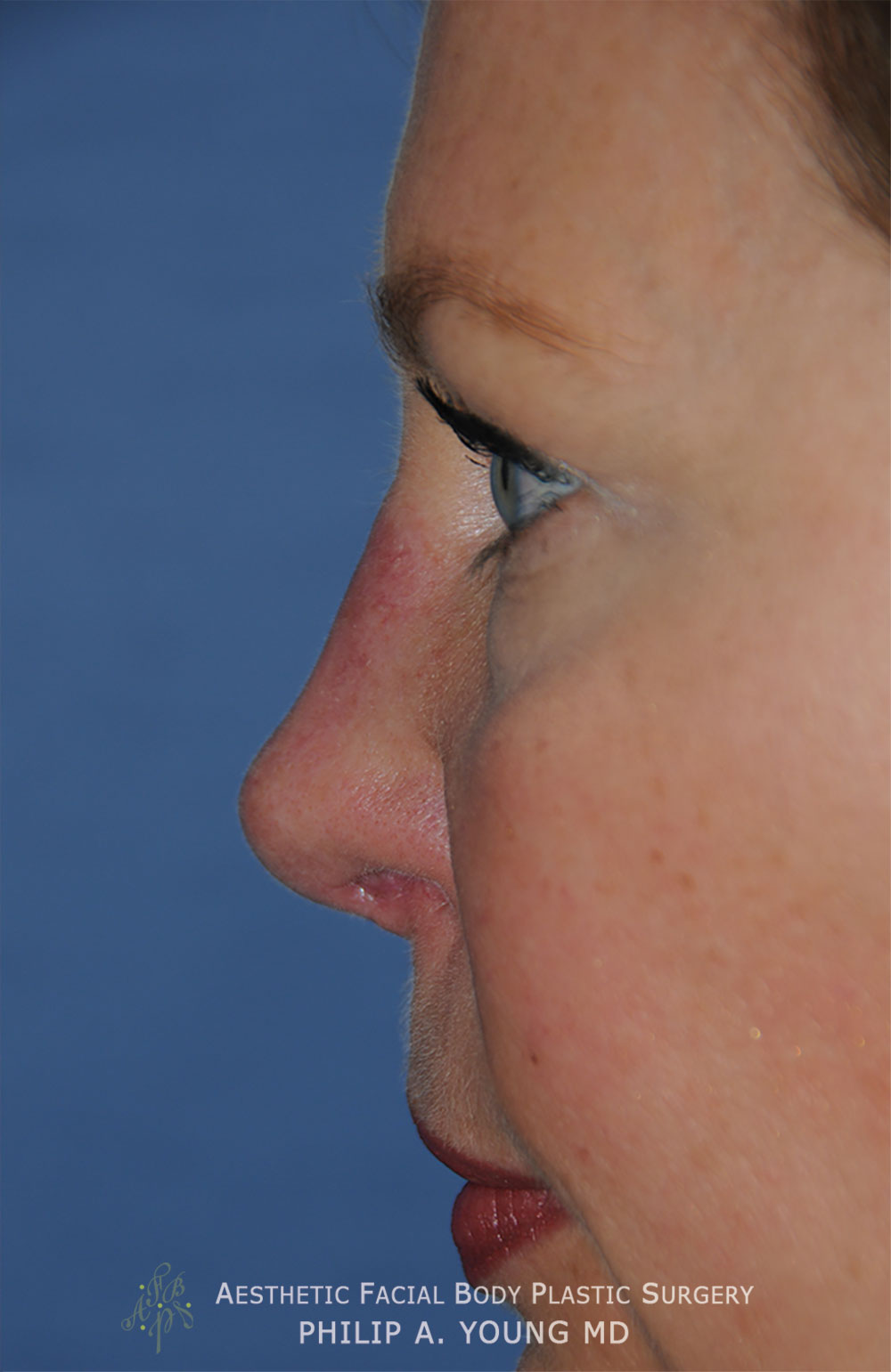After Revision Rhinoplasty for Crooked Tip, Crooked Nasal Bridge, Nose Bridge Dorsal Irregularities, Hook & Droopy Nasal Tip, Retracted Alae Nostrils Left Side Close Up View.