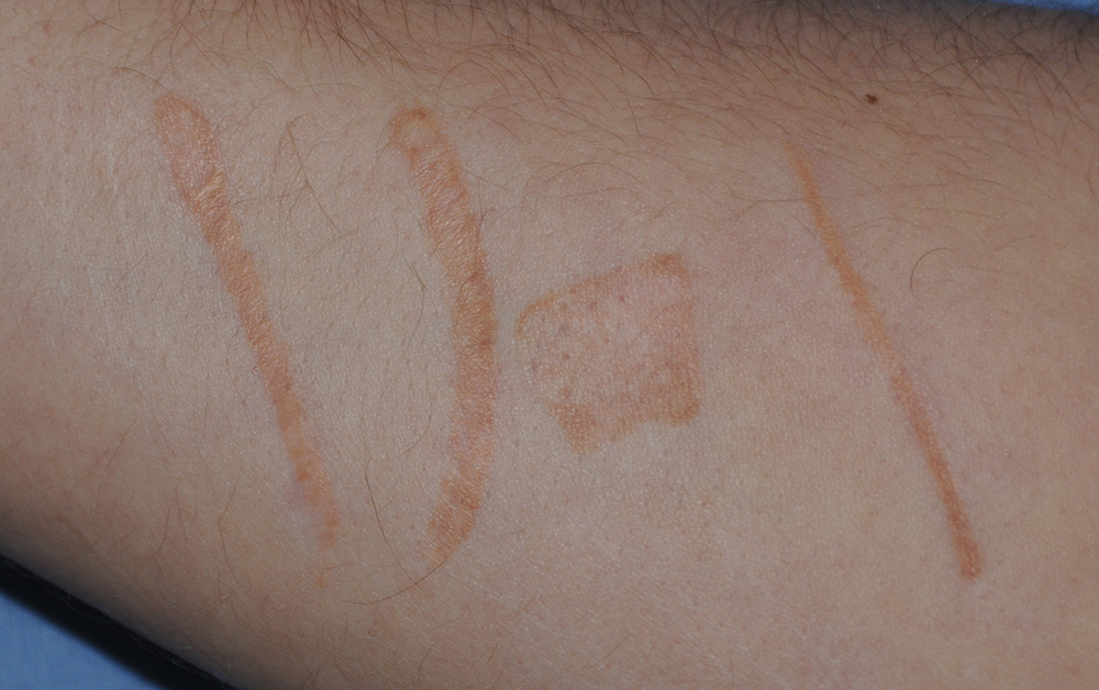 Self Harm Scar Treatment with Excision and co2 Laser Before