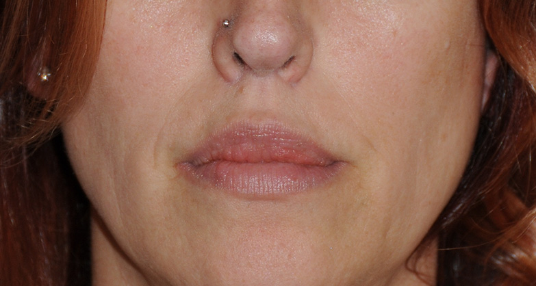After Buffalo Gull Wing Lip Lift & Lip VY Advancement