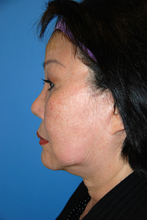 Neck lift recovery bellevue seattle