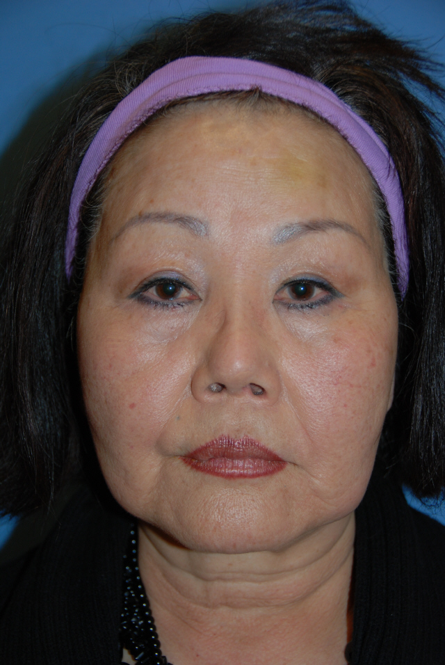Face and Neck Lift Recovery