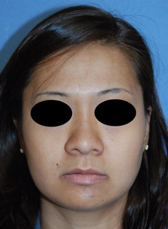 Asian Plastic Surgery Rhinoplasty Before