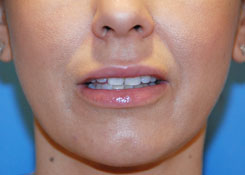 Cleft chin plastic surgery before and after games