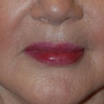 Lip Filler | Injections | Enhancement | Augmentation