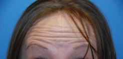 Botox Dysport for Forehead Wrinkles Before