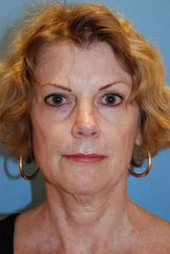 Cheek lift youngvitalizer after treatment in Bellevue