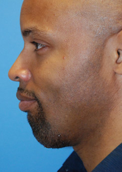 After Chin augmentation using a custom size silicone implant