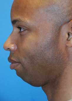 Before Chin augmentation using a custom size silicone implant