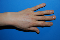 Before Fat Grafting | Augmentation | Injections to Rejuvenate the Hands