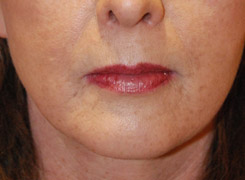 Fat Transfer Lip Augmentation and to the Mouth Region Before