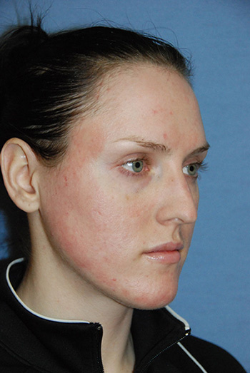 laser resurfacing photo bellevue seattle