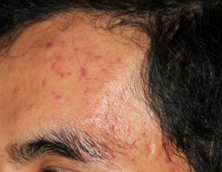 Microdermabrasion before