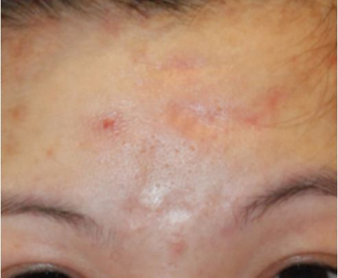 Pock Mark Acne Scar Treatment