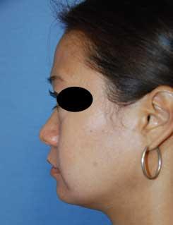 rhinoplasty healing