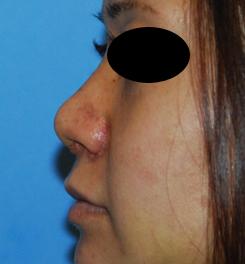 rhinoplasty healing 02