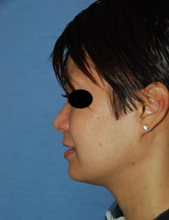rhinoplasty healing 04
