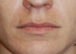 Perma Lip Silicone Implant for Lip Augmentation | Enhancement