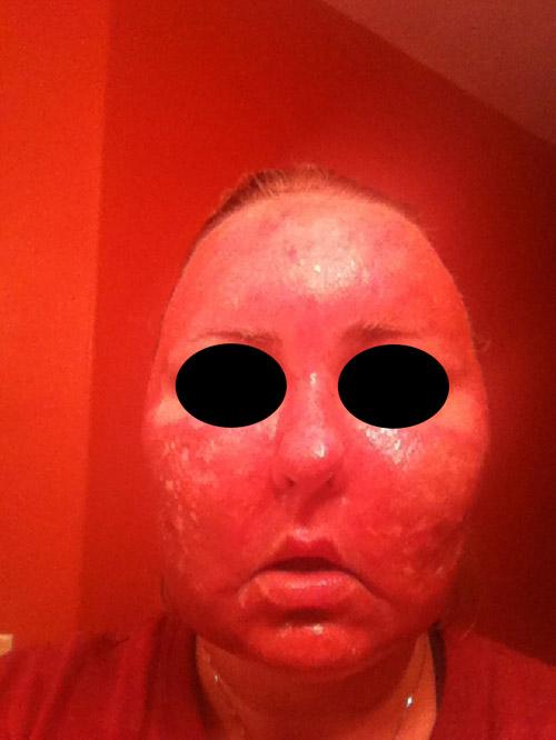 Acne scar vitalizer day 2