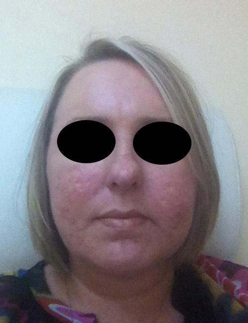 Acne scar vitalizer day 37