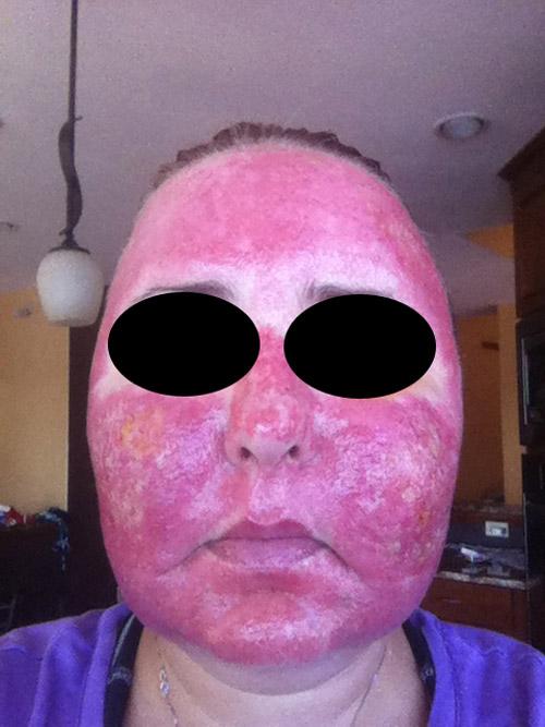 Acne scar vitalizer day 5