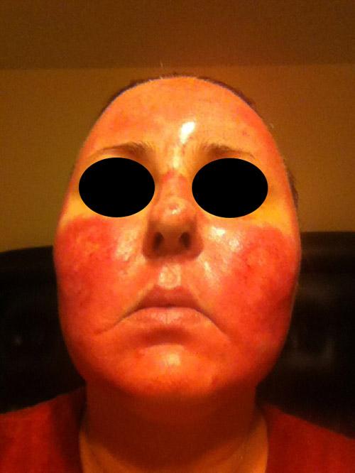 Acne scar vitalizer day 6