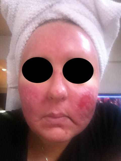 Acne scar vitalizer day 8