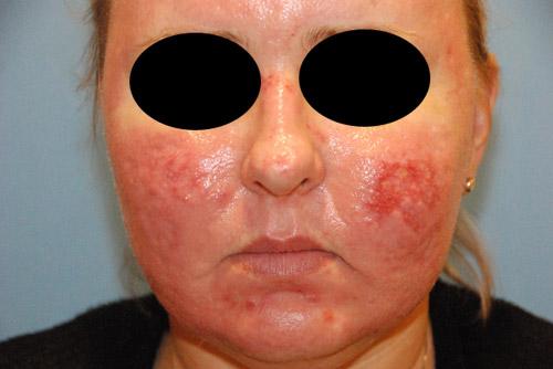 Acne scar vitalizer day 9